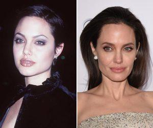 Angelina Jolie antes e depois bichectomia