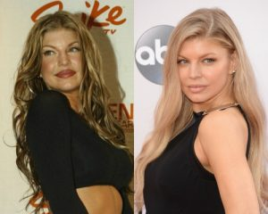 Cantora Fergie antes e depois Bichectomia