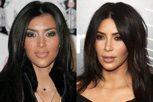 Kim Kardashian antes e depois Bichectomia