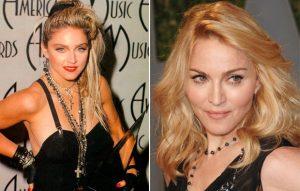 Madonna antes e depois Bichectomia