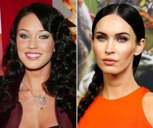 Atriz Megan Fox antes e depois Bichectomia