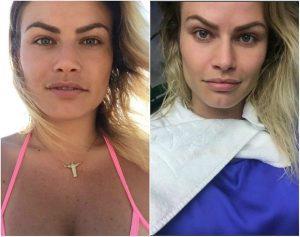 Natalia Casassola antes e depois Bichectomia