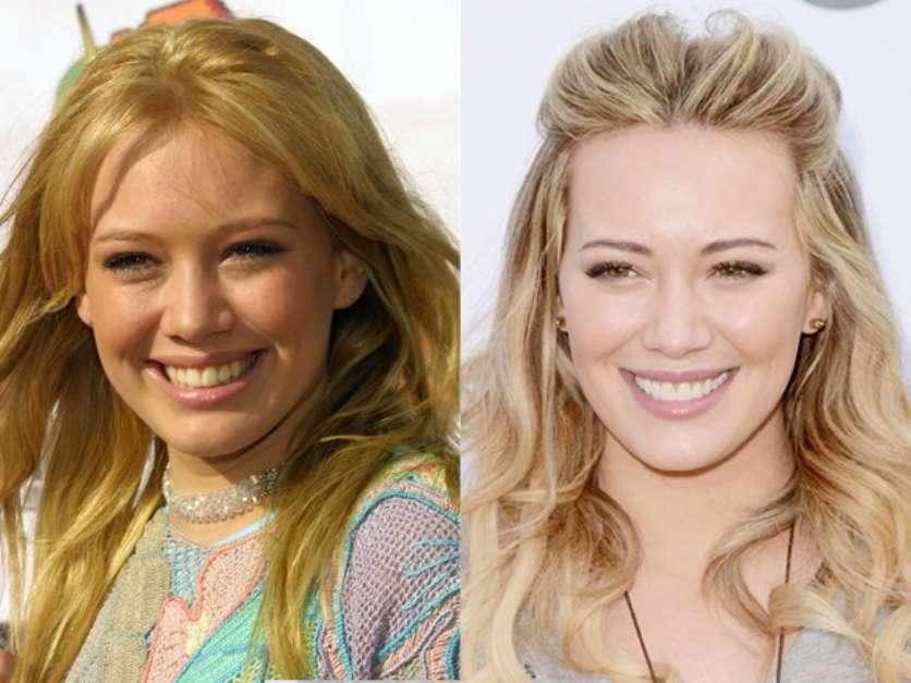 Atriz Hilary Duff antes e depois Implante