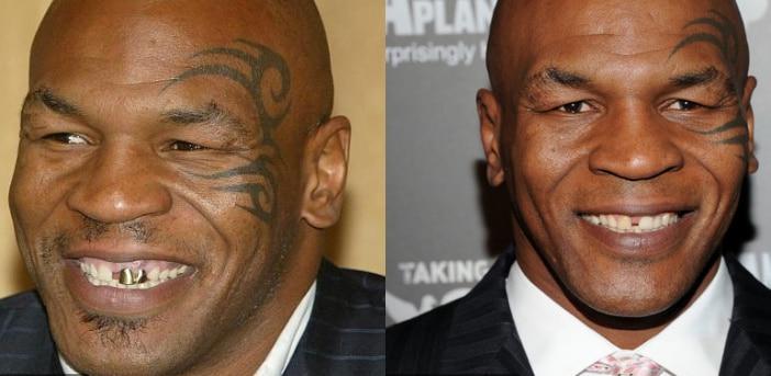 Boxeador Mike Tyson antes e depois Implante