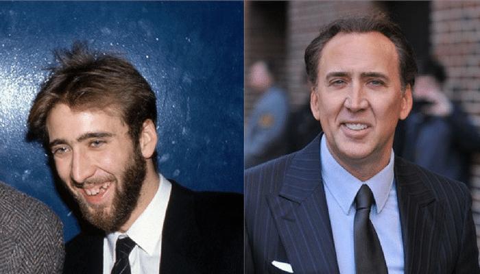 Ator Nicolas Cage antes e depois Implante