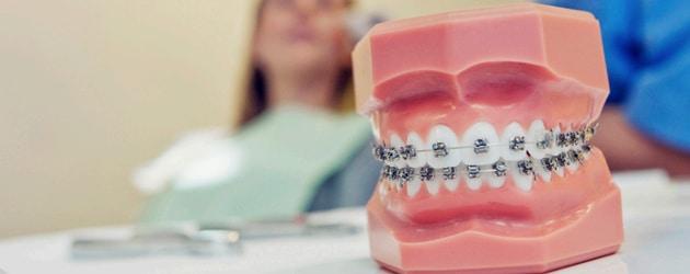 Aparelho ortodôntico deve ser usado antes do implante dental