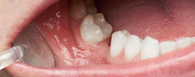Perda de dente provoca movimentação dos outros dentes