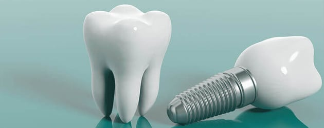 Implante dental é feito com titânio que não causa rejeição
