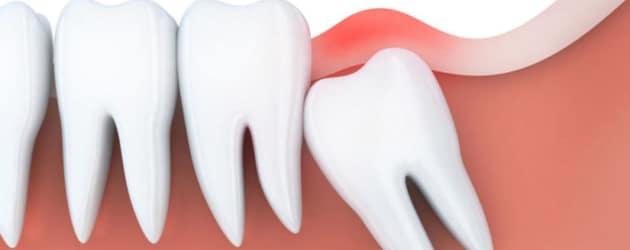Dente siso pode nascer torto e prejudicar outros dentes