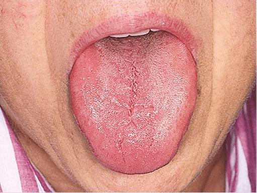 Fissuras na língua de pessoas idosas pode ser sintoma de baixa salivação