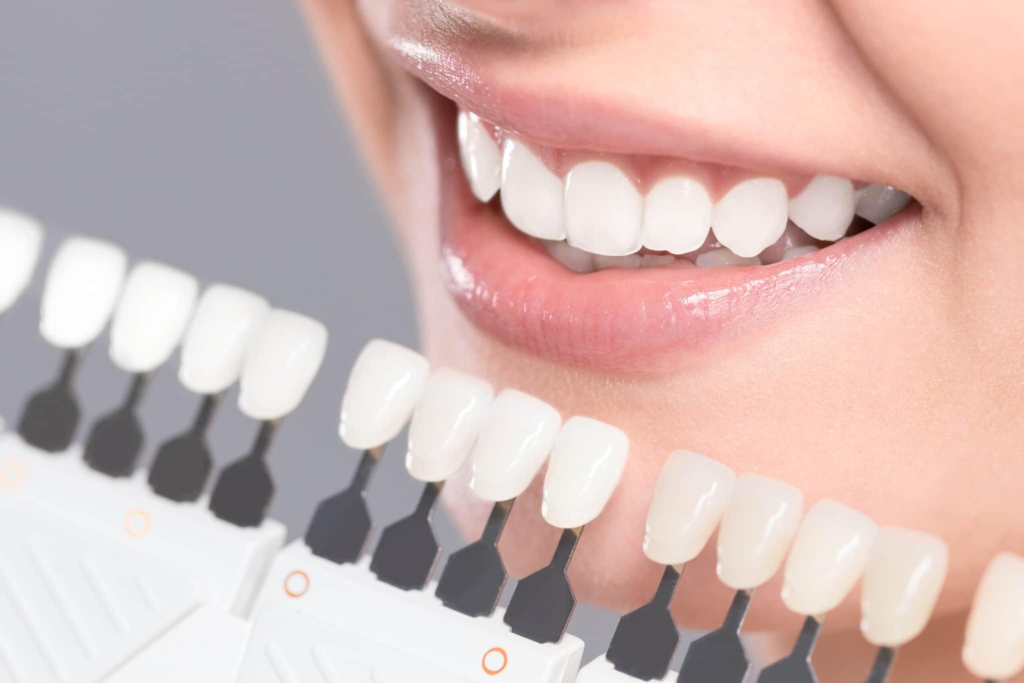 O clareamento dental ajuda na auto estima das pessoas