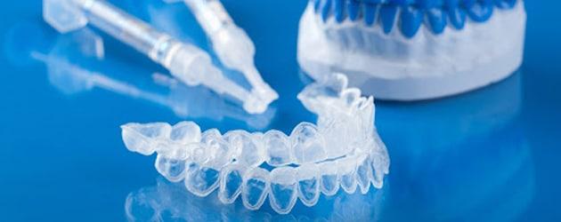Clareamento dental pode ser feito em casa com o uso de moldeiras