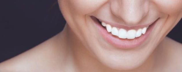 Clareamento dental pode durar até dois anos