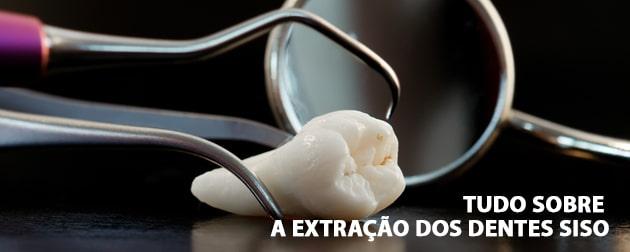 tudo sobre a extração dos dentes siso