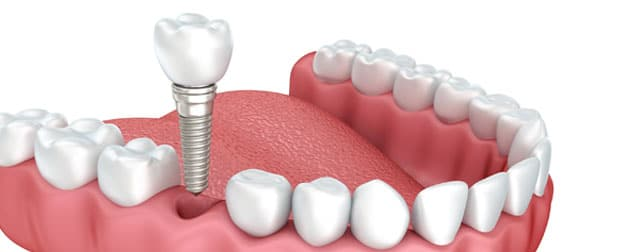 Implante dentário é feito com anestesia e não dói