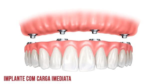 Implante com carga imediata pode ser feito em um único dia
