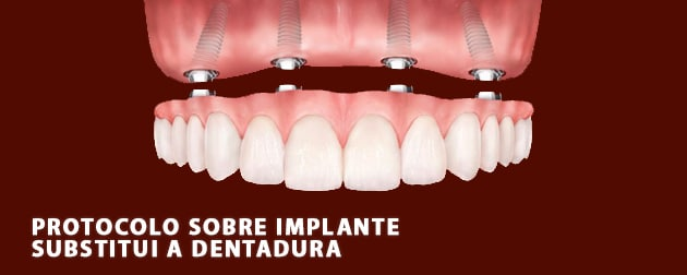 O protocolo sobre implante é o melhor substituto da dentadura