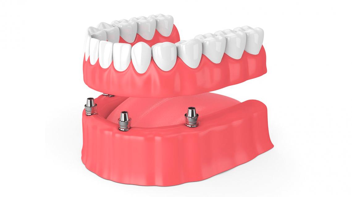 Implante com carga imediata substitui poucos ou todos os dentes perdidos